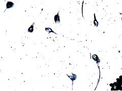 Sperma close up - Ejaculat 1000 x